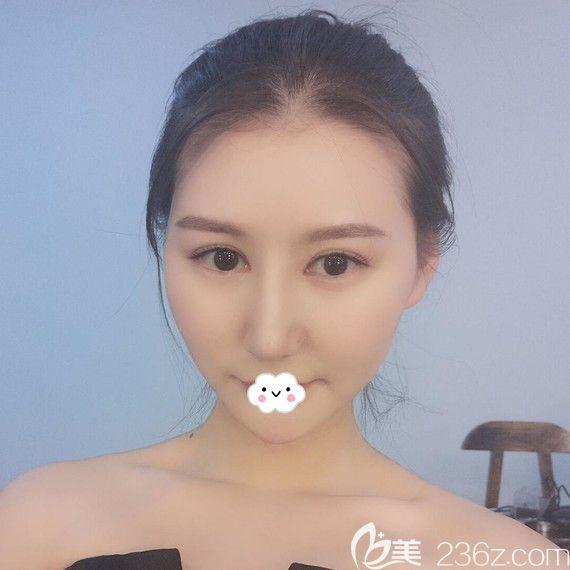 不知武汉艺星杨国梁隆鼻怎么样的看我找他做的假体+自体耳软骨鼻综合案例恢复图