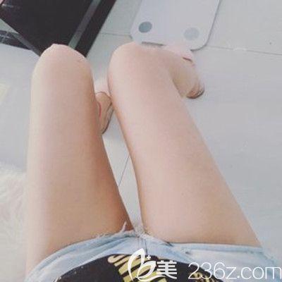 哈尔滨斯美诺好不好?看斯美诺耿成虎大腿吸脂0-90天恢复案例对比照术后效果来回答!