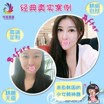 3月女人节邯郸华美推出一大波整形优惠活动 双眼皮专享价为1680元
