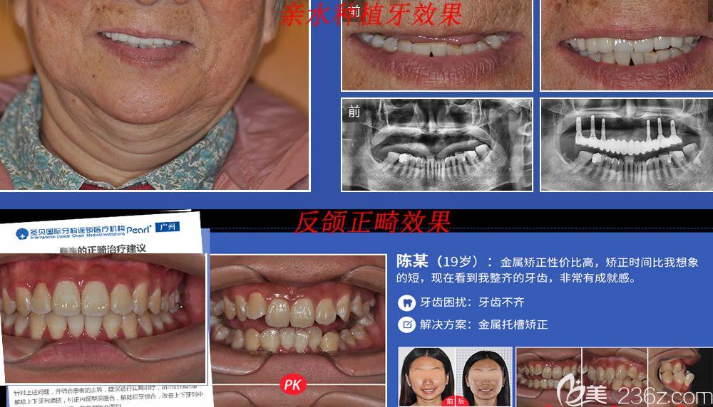 广州圣贝口腔种植牙和牙齿正畸案例效果图