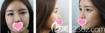 上海艺星医疗美容医院李勇术前照片1