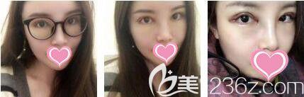 上海艺星医疗美容医院李勇眼修复真人案例术后天