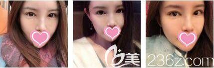 上海艺星医疗美容医院李勇眼修复真人案例术后第七天