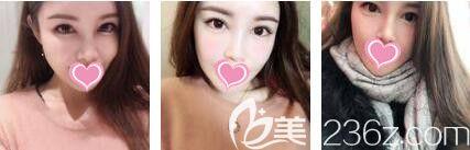 做完埋线双眼皮对形状不满意,来到上海艺星找李勇做双眼皮修复没想到术后效果美呆了