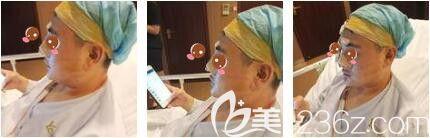上海艺星医疗美容医院彭才学半肋骨+膨体隆鼻真人案例术后第二天