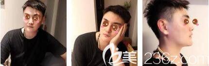 上海艺星医疗美容医院彭才学术后照片1