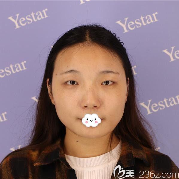 武汉艺星医疗美容门诊部都志杰术前照片1