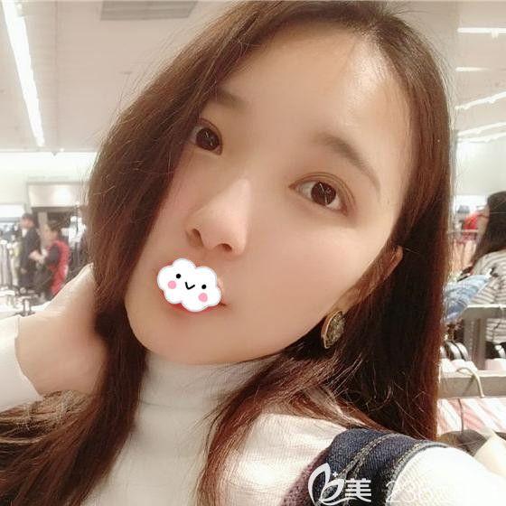 武汉艺星医疗美容门诊部都志杰术后照片1