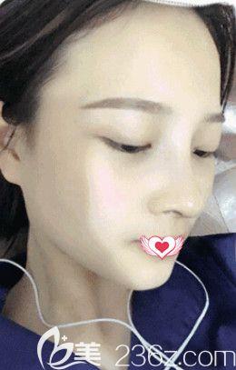 邢台美加美韩伟强院长做达拉斯鼻综合手术为我雕刻宛若天生的优雅鼻