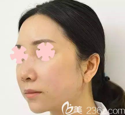 在南宁美丽焦点整形做全脸线雕提升后改善了我松弛下垂的皮肤,附上前后对比照片
