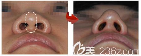 广州美恩许扬滨做的鼻子修复案例
