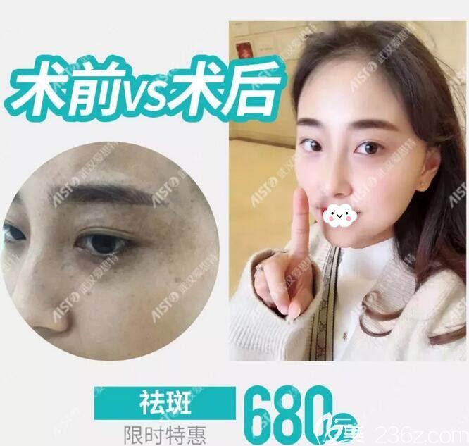激光祛斑需要多少钱:全脸做激光祛斑一共需要几次一共多少钱