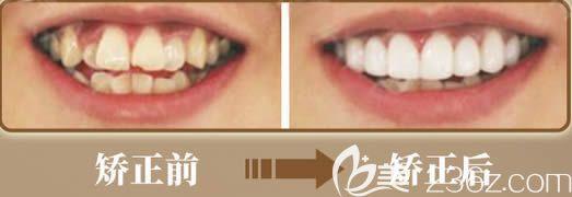 成都圣贝成人牙齿拥挤矫正前后对比效果