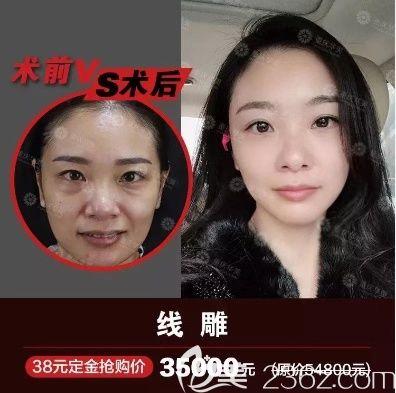 重庆华美线雕多少钱?