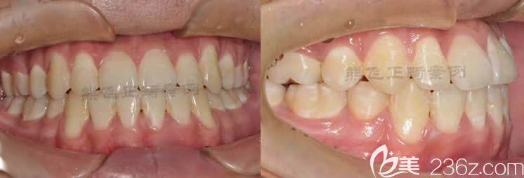 在广州圣贝口腔做牙齿矫正,历时两年半解除我牙齿反颌的地包天症状