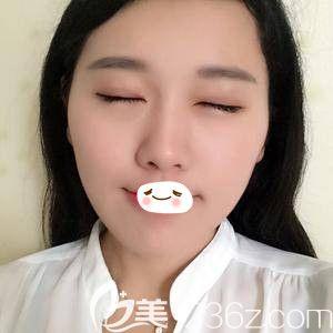 到郑东美眼整形找田国静医生做的双眼皮修复 让我的眼美的刚刚好!