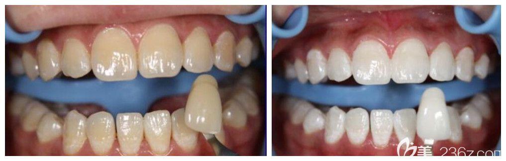 成都哪里牙科比较好?君臣口腔炫齿美白治疗前后效果来验证