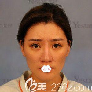 武汉艺星医疗美容门诊部朱胜军术前照片1