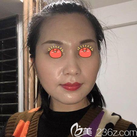 通过对全杭州城做轮廓手术医生筛选后,选中了杭州华山连天美医院高俊明做下颌角和全瓷牙