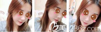 上海艺星医疗美容医院彭才学鼻综合+瘦脸除皱第七天