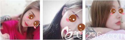 瘦脸和隆鼻能够一起做吗?我在上海艺星做了鼻综合+瘦脸除皱这六十五天恢复过