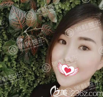 海南祛眼袋哪家医院好?看海南瑞韩医学美容医院林晓燕做明星祛眼袋真人术后1个月效果反馈!