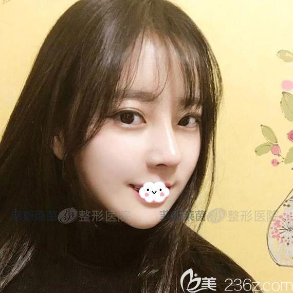 左右脸不对称对比韩国面部轮廓医院排名后找韩国菲斯莱茵Faceline整形外科医院做了面部不对称整形术