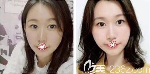 重庆联合丽格王志军做线雕多少钱?22岁汪旻这样讲了她做面部线雕和玻尿酸填充下巴的过程。