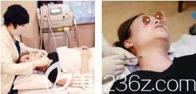 上海艺星医疗美容医院徐熠涵进口超声射频+蜂巢皮秒+真人案例术中照
