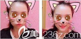 上海艺星进口超声射频去除颈纹效果好,蜂巢皮秒+去皱嫩肤搭配效果更好