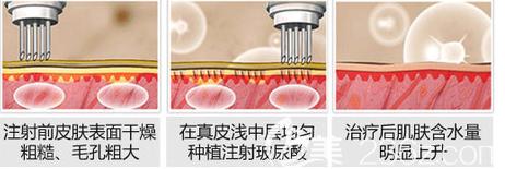 祛除颈纹的三种有效方法