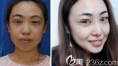 沈阳杏林下颌角手术案例