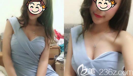 做完鼻子2年后再次回到杭州静港医美找崔玉柱医生做了自体脂肪隆胸和大腿吸脂