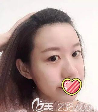 联合丽格王长林全脸脂肪填充半个月效果