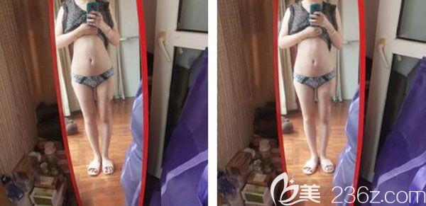 腰腹部吸脂两个月拥有了前凸后翘S型好身材