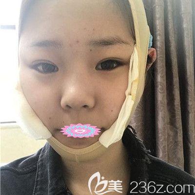 武汉华美付国友下颌骨整形术后2天图片展示