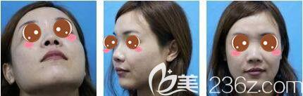 上海玫瑰医疗美容医院王晨光术前照片1