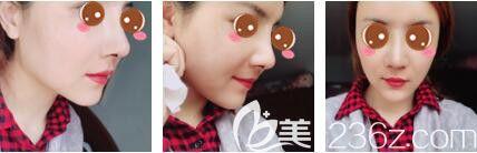 上海玫瑰医疗美容医院王晨光鼻综合+面部脂肪填充真人案例术后第七天