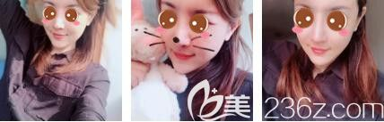 上海玫瑰医疗美容医院王晨光鼻综合+面部脂肪填充真人案例术后十五天