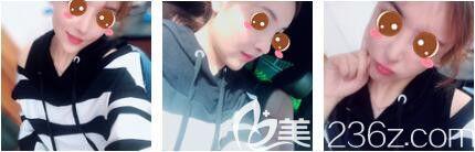 上海玫瑰医疗美容医院王晨光术后照片1