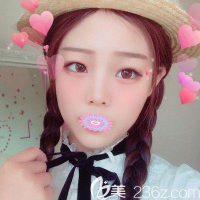 在武汉华美付国友做了V脸术后知道了为何下颌角手术千万别去做,因为美的自己都会爱上自己哟