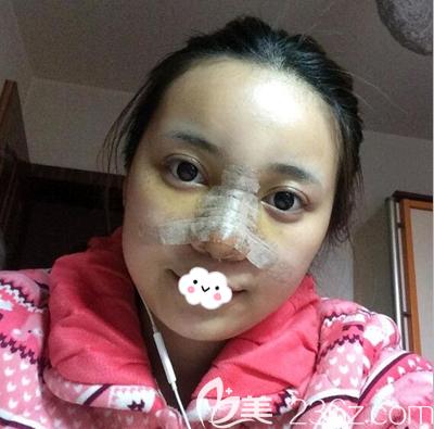 郝劲伟硅胶隆鼻术后3天
