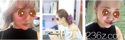 上海玫瑰医疗美容医院聂利萍术前照片1