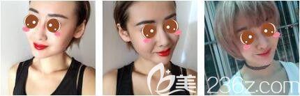上海玫瑰医疗美容医院聂利萍激光脱唇毛真人案例术后第一天