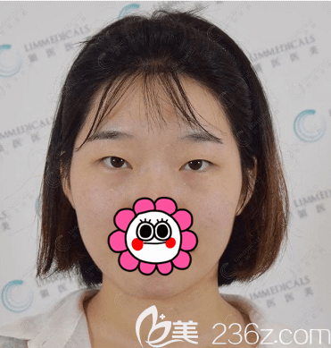 北京领医医疗美容诊所高泽博和术前照片1