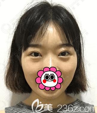 北京领医医疗美容诊所高泽博和术后照片1