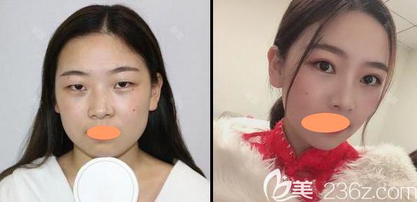 南昌大学医疗美容涂飞翔割双眼皮+综合隆鼻案例效果图