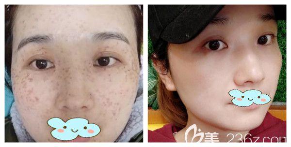 武汉华美云丽医生超皮秒祛斑术后案例对比图