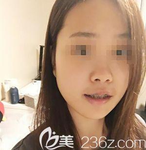 在韩国创造美做面部轮廓手术后2周