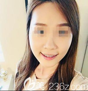 在韩国创造美做面部轮廓手术后1个月